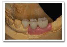 インプラント治療の流れ-人工の歯を取り付け