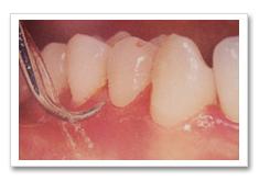 成人予防プログラムの内容-歯石の除去について